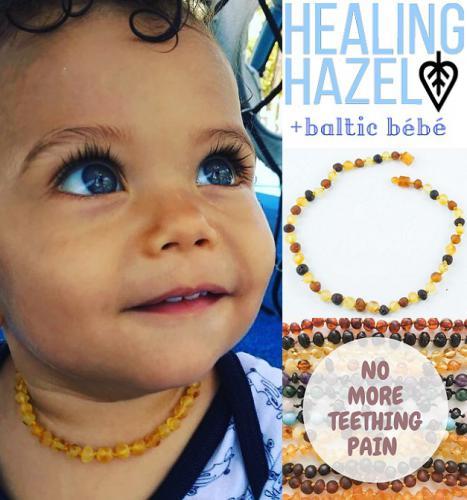 healing-hazel-amber-necklace-all.jpg